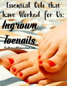 Essential Oils that have worked for us: Ingrown Toenails