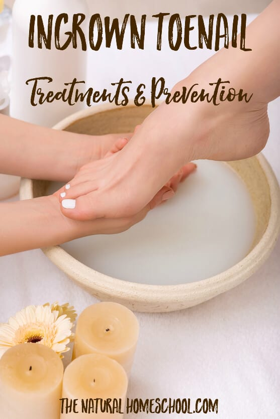In this post, I will share with you the best essential oils that have worked for us for ingrown toenails. So read on to find out what are the best essential oils for ingrown toenail.